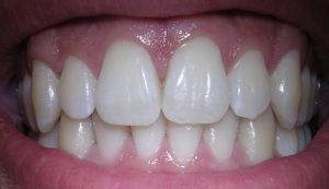 زرع الاسنان