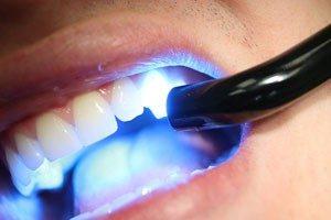 dentalfillingpattaya-300x200