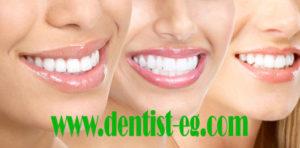 مراحل تجميل الاسنان