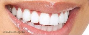 لومينير الأسنان